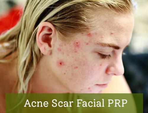 Acne Scar Facial PRP