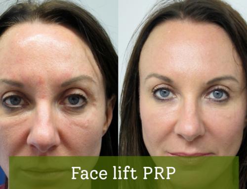Face lift PRP