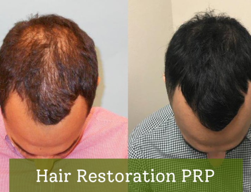 Hair Restoration PRP