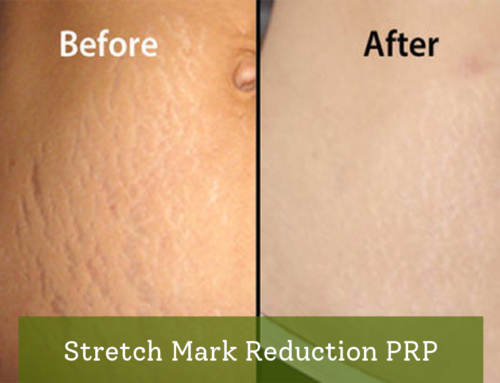 Stretch Mark Reduction PRP