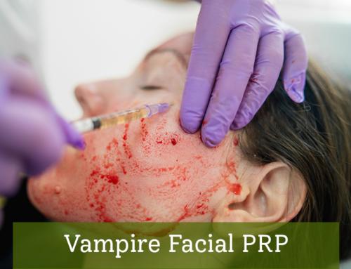 Vampire Facial PRP